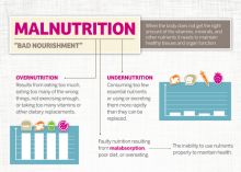 Malnutrition infographic